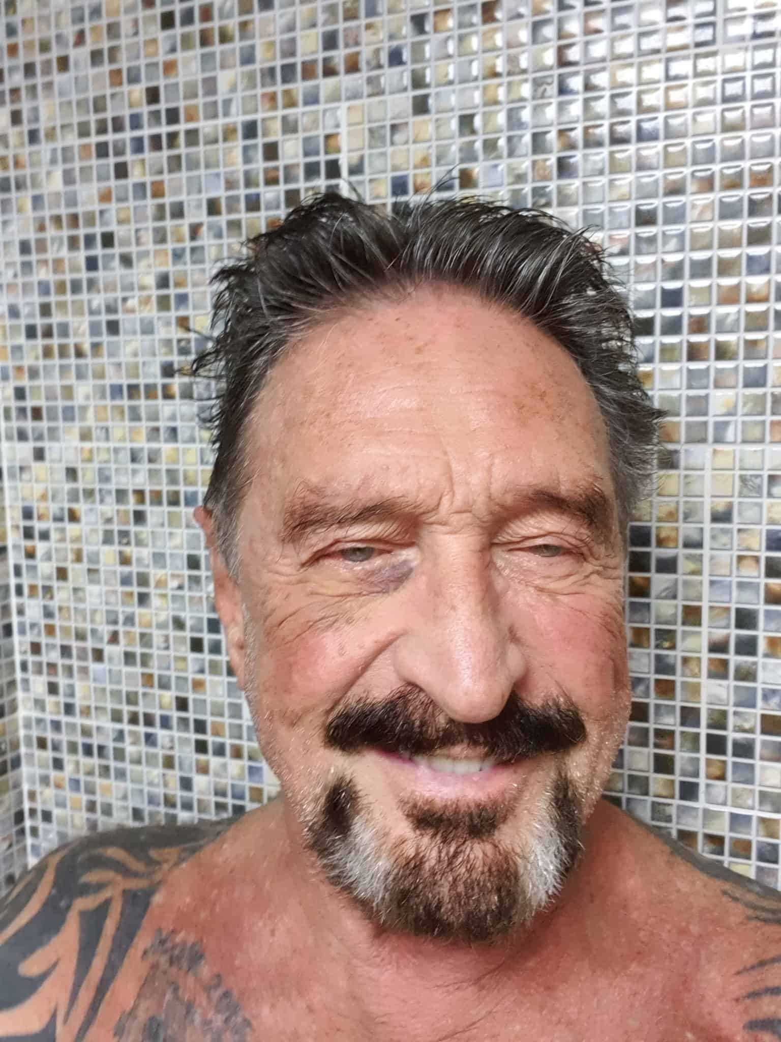 John McAfee Black Eye After Arrest. Source: Twitter